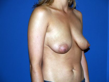 Breast Lift Before & After Patient #1565