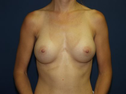 Breast Augmentation Before & After Patient #2920