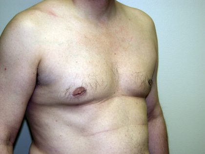 Gynecomastia Before & After Patient #934
