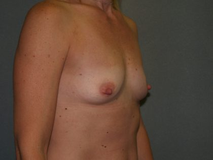 Breast Augmentation Before & After Patient #3146