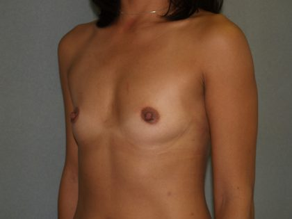 Breast Augmentation Before & After Patient #2447