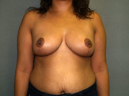 Breast Reduction Before & After Patient #3208