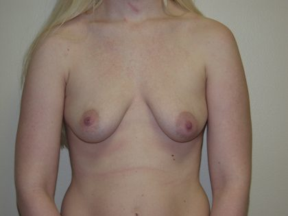 Breast Lift Before & After Patient #1595