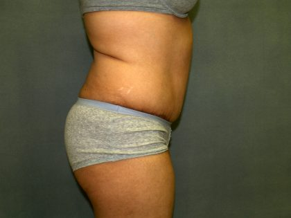 Tummy Tuck Before & After Patient #1969