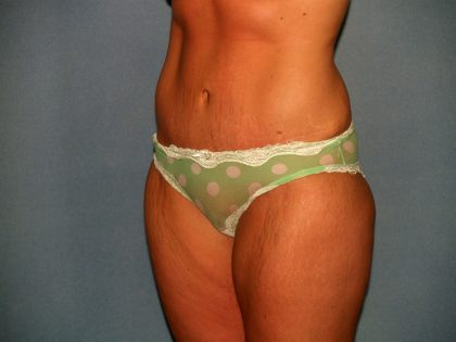 Tummy Tuck Before & After Patient #2403