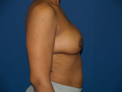 Breast Reconstruction Before & After Patient #2158
