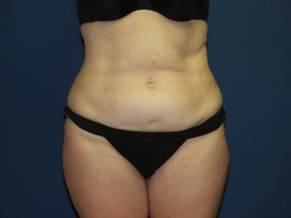 Tummy Tuck Before & After Patient #2095