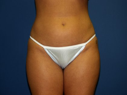 Liposuction Before & After Patient #3847