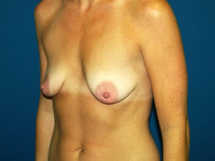 Breast Lift Before & After Patient #1432