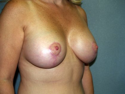 Breast Lift Before & After Patient #1502