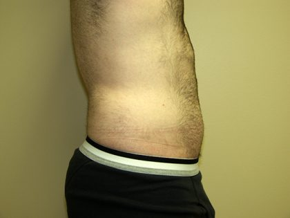 Liposuction Before & After Patient #3794