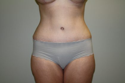 Tummy Tuck Before & After Patient #2135
