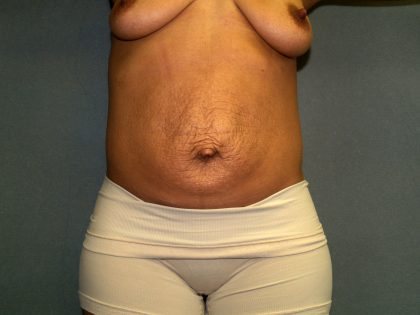 Tummy Tuck Before & After Patient #2223