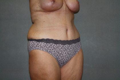 Tummy Tuck Before & After Patient #2023