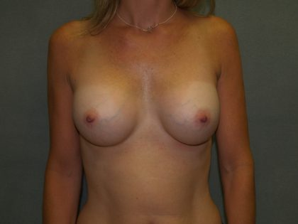 Breast Augmentation Before & After Patient #2843