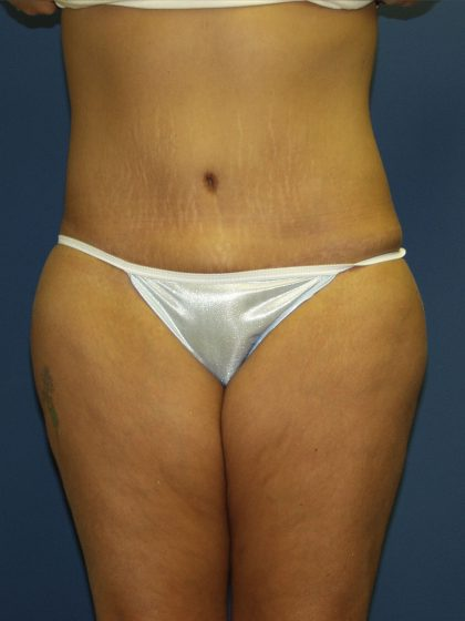 Circumferential Tummy Tuck Before & After Patient #913