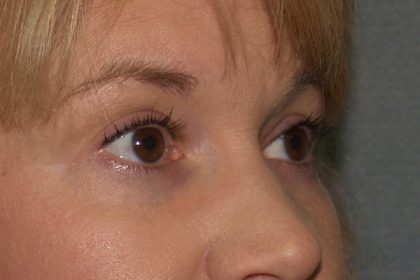 Eye Surgery Before & After Patient #706