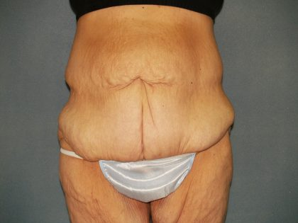 Circumferential Tummy Tuck Before & After Patient #920