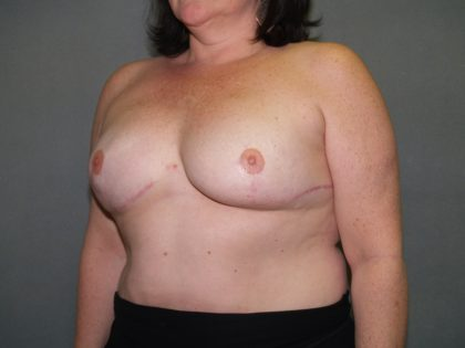 Breast Reconstruction Before & After Patient #2324