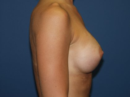 Breast Augmentation Before & After Patient #2822