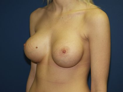 Breast Augmentation Before & After Patient #3032