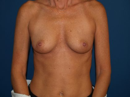 Breast Augmentation Before & After Patient #3215