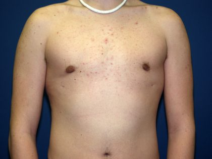 Best Male Breast Reduction Gynecomastia Cleveland Ohio Dr