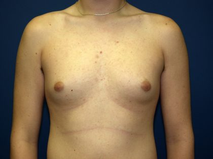 Gynecomastia Before & After Patient #927