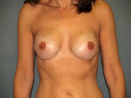 Breast Reconstruction Before & After Patient #1783