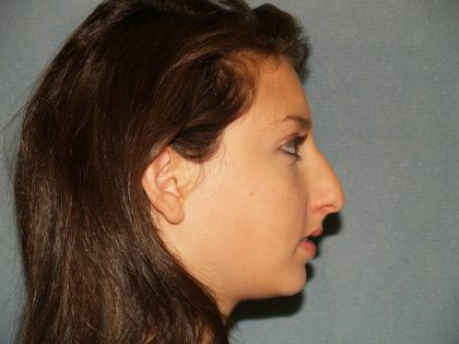 Nose Surgery Before & After Patient #759