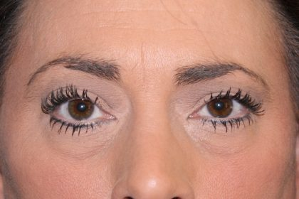 Eye Surgery Before & After Patient #698