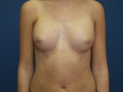 Breast Augmentation Before & After Patient #3074