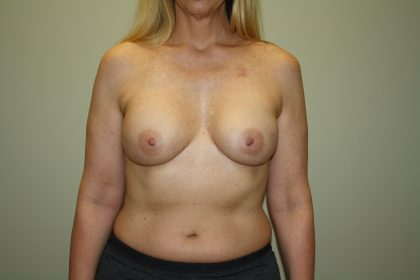 Breast Reconstruction Before & After Patient #2227