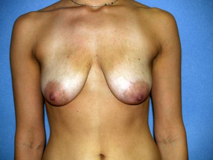 Breast Lift Before & After Patient #1681