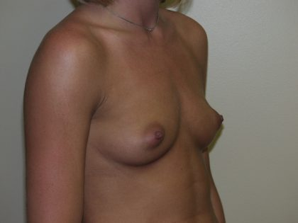 Breast Augmentation Before & After Patient #2983