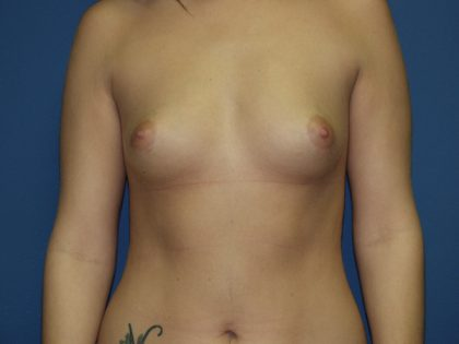 Breast Augmentation Before & After Patient #3011