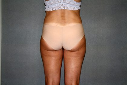 Liposuction Before & After Patient #3682