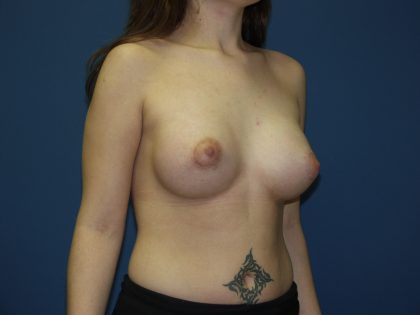 Breast Lift Before & After Patient #1544
