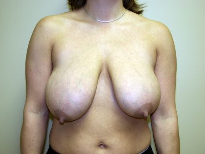 Breast Lift Before & After Patient #1667