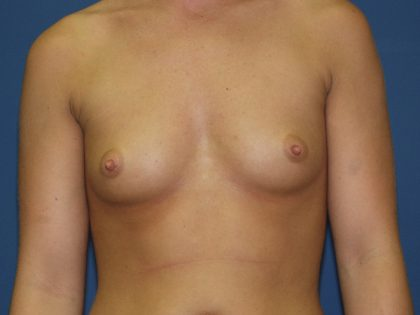 Breast Augmentation Before & After Patient #2780