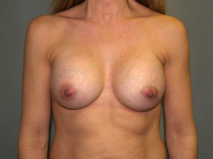 Breast Augmentation Before & After Patient #2482