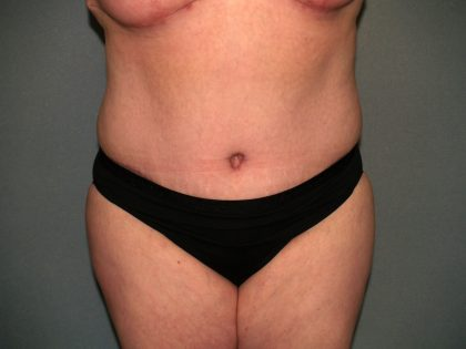 Tummy Tuck Before & After Patient #2323