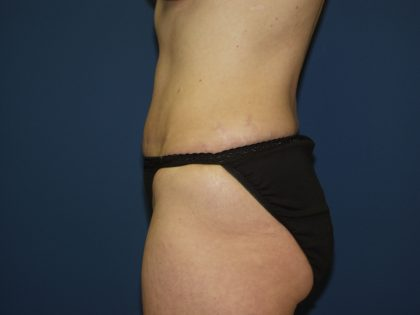Tummy Tuck Before & After Patient #2082
