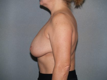 Breast Reconstruction Before & After Patient #1933