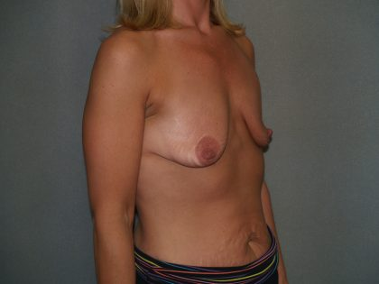 Breast Lift Before & After Patient #1603