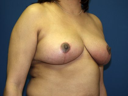 Breast Reduction Before & After Patient #3383