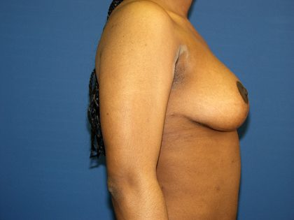 Breast Reduction Before & After Patient #3315