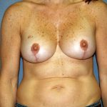 Breast Lift Before & After Patient #1474