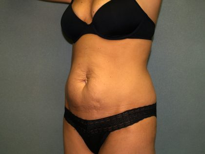 Tummy Tuck Before & After Patient #2176