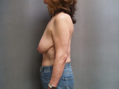 Breast Reconstruction Before & After Patient #1991